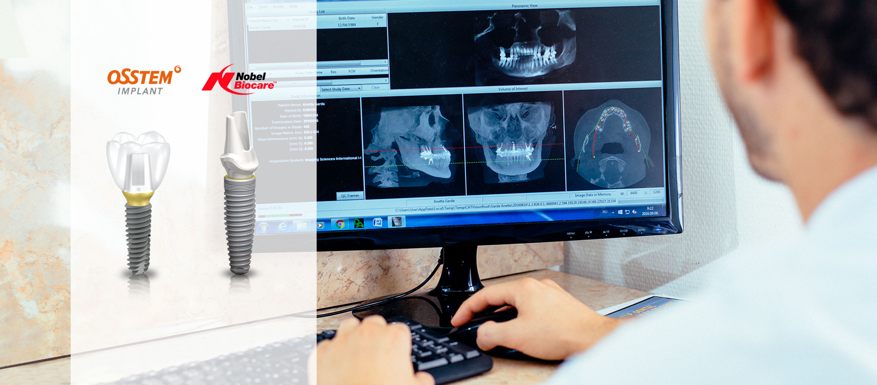 Painless tooth replacement with an implant. An X-ray photo and a tooth impression can be seen on the table