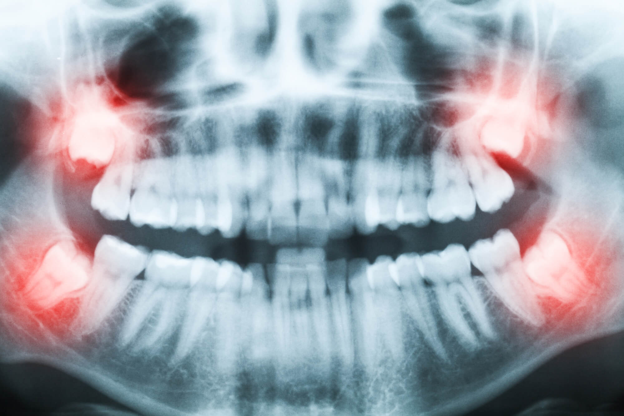 My wisdom tooth is aching or insensible!
