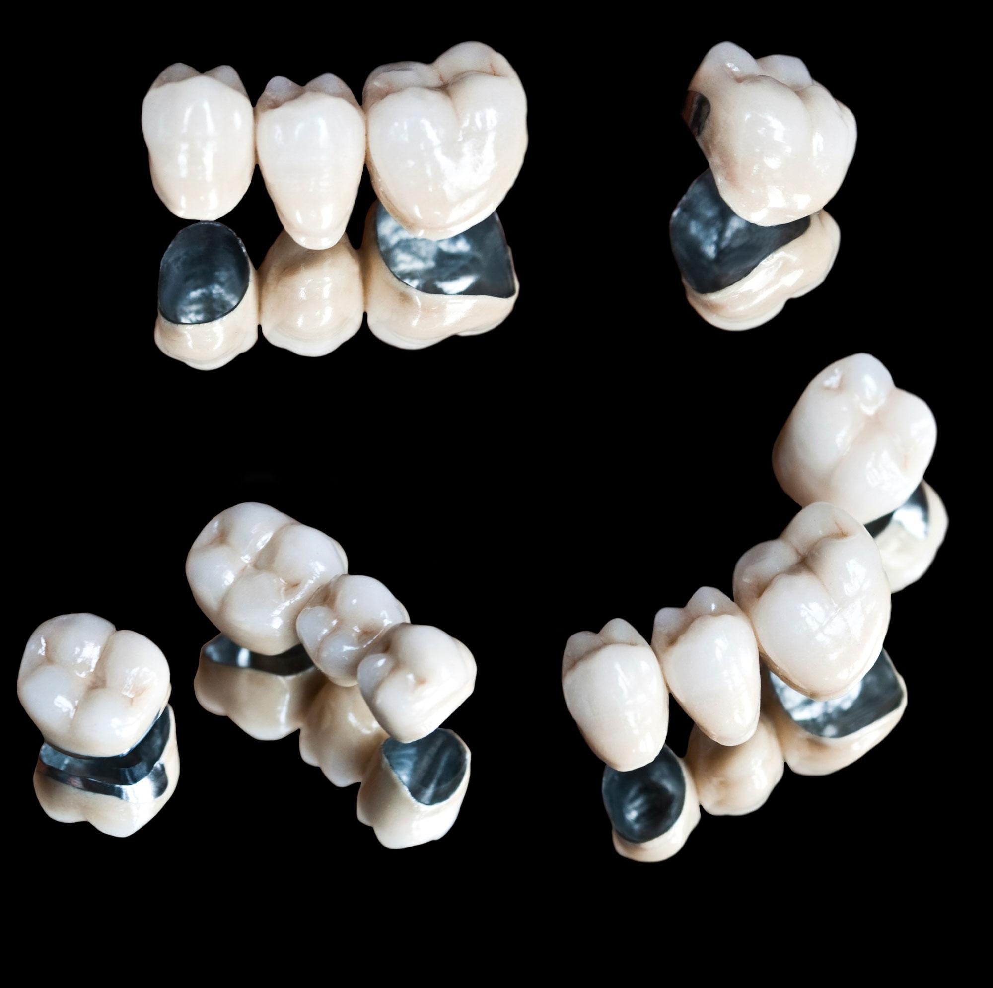 Metal-ceramics crown