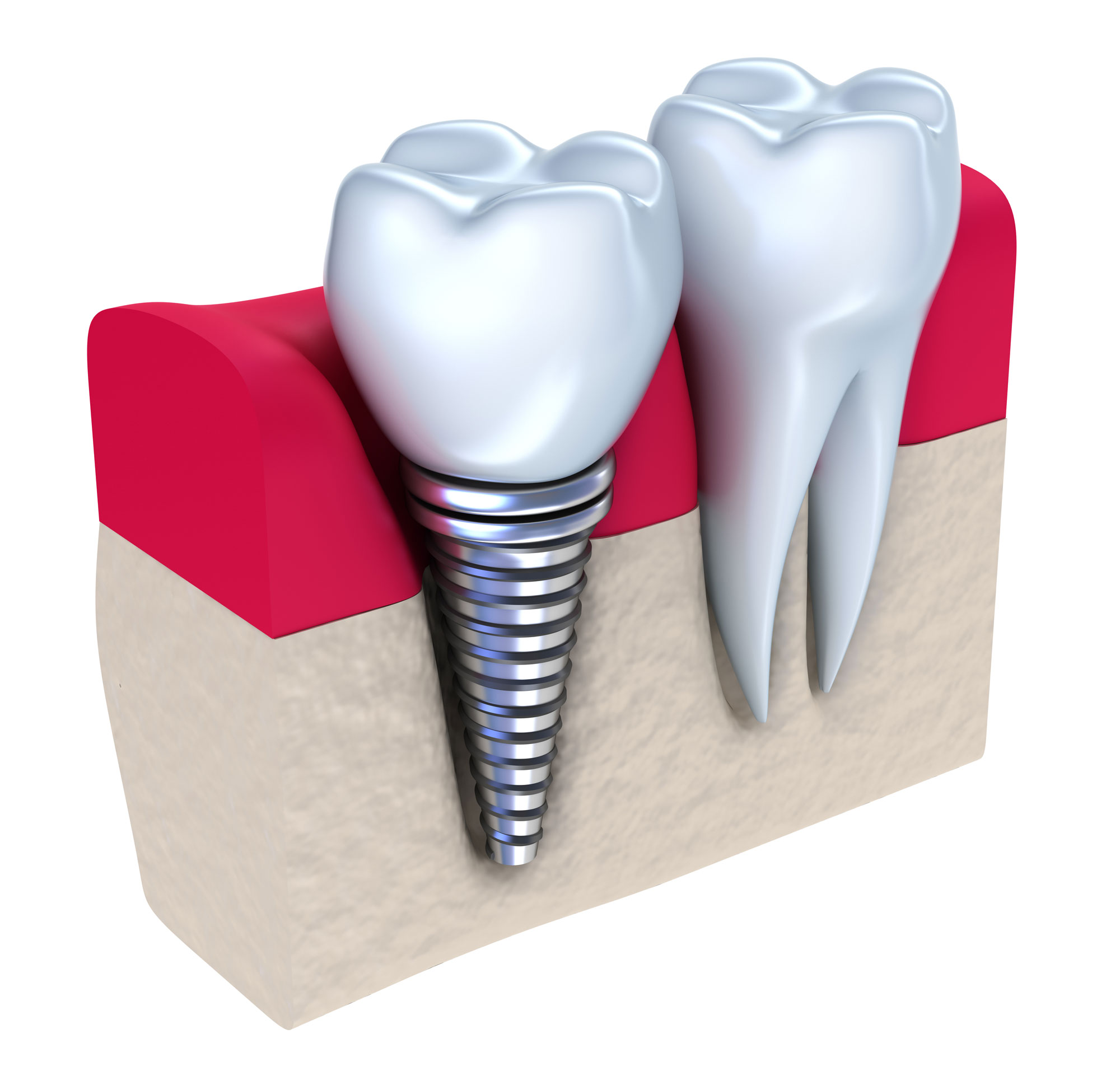 Tooth replacement by an implant in case of one tooth missing.