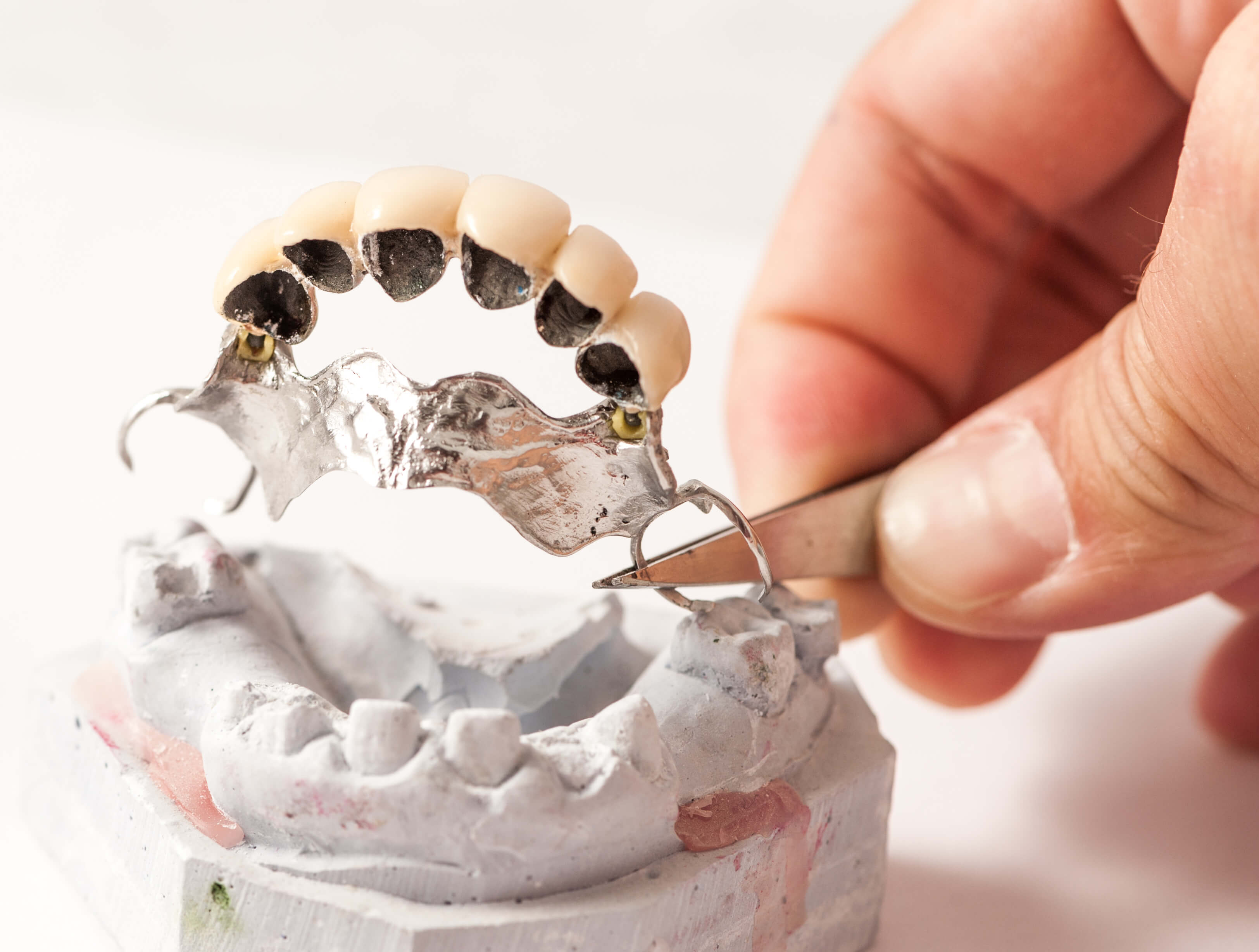 A traditional, partial prosthesis, tooth implant