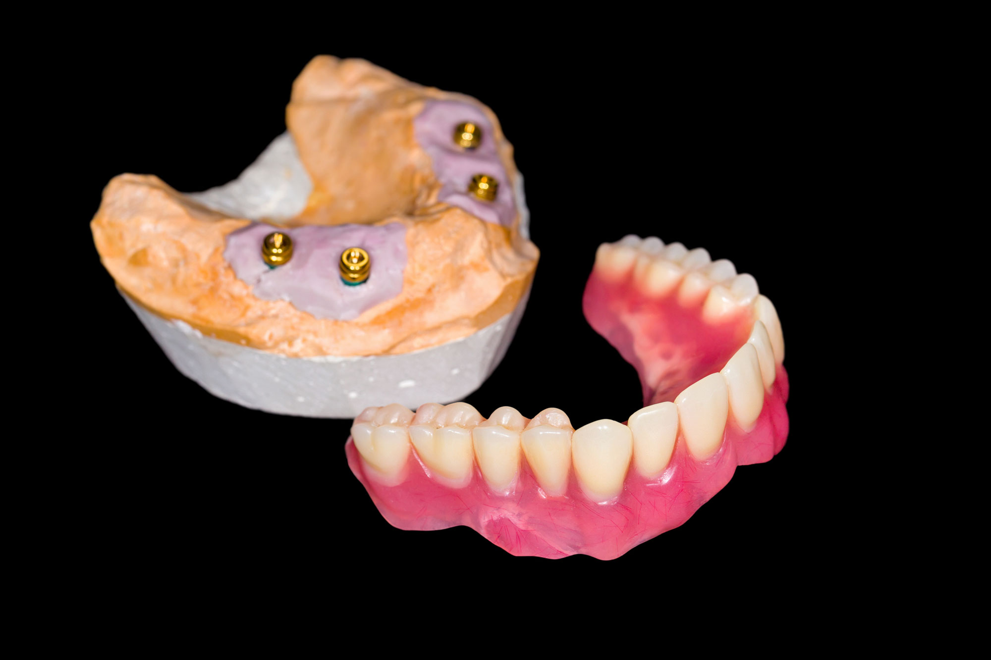 Removable full-row implant in case of total loss of teeth