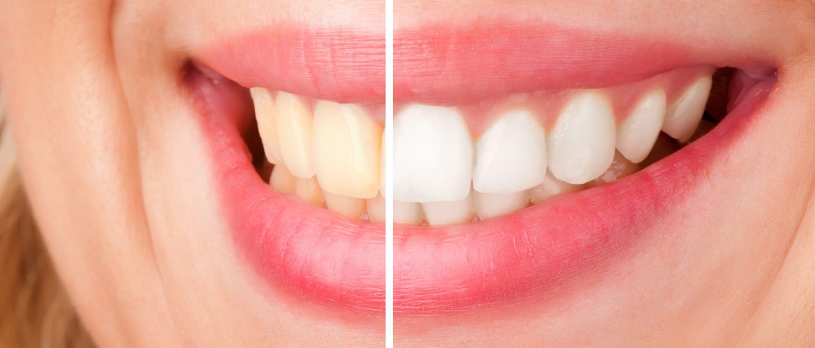 A woman's smile before and after tooth whitening.