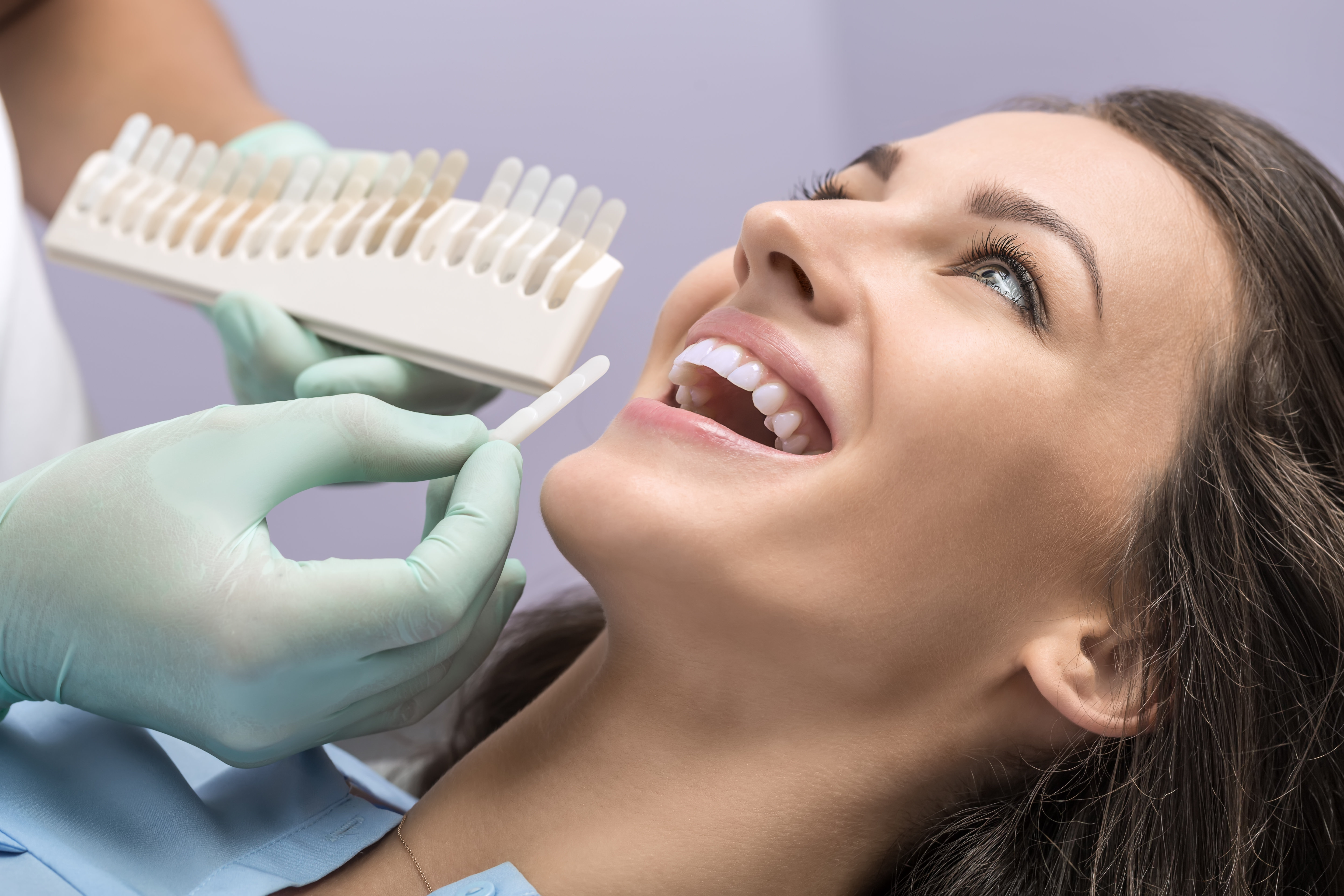 The dentist and the assistant whiten the teeth without peroxidizing in the ArtDent Dentistry Clinic. Using tooth whitening more shade of white colour can be achieved without damaging the teeth. The result is guaranted.