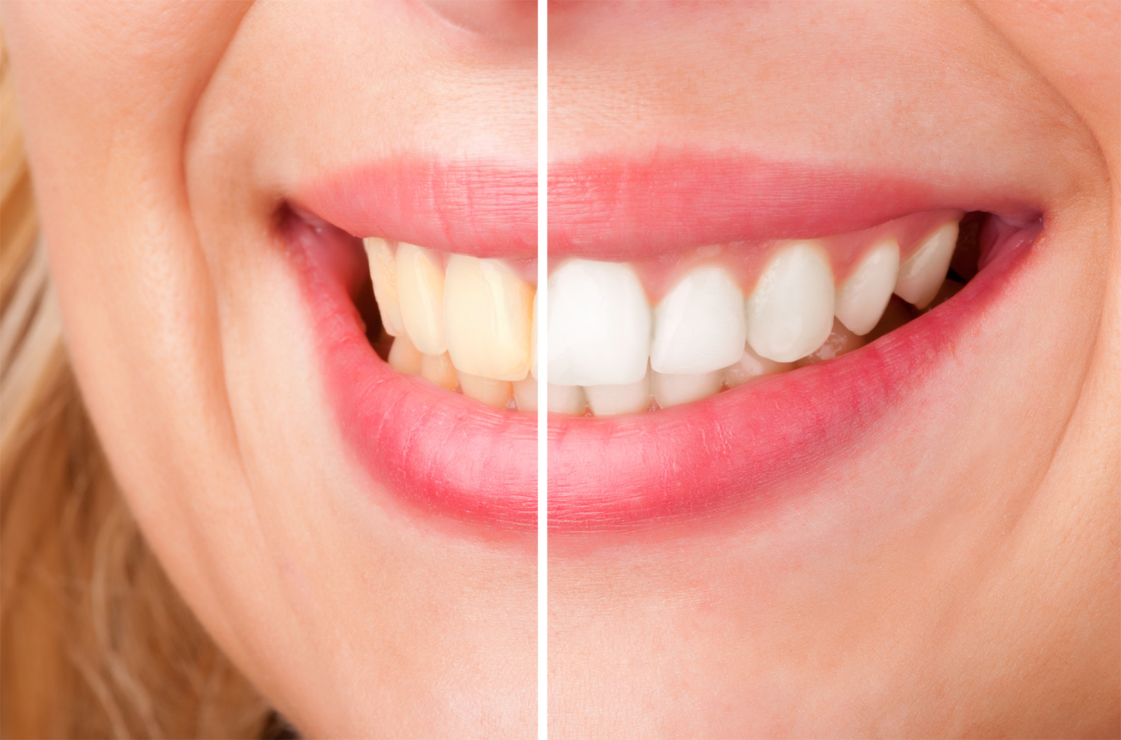 Tooth whitening at home, before and after