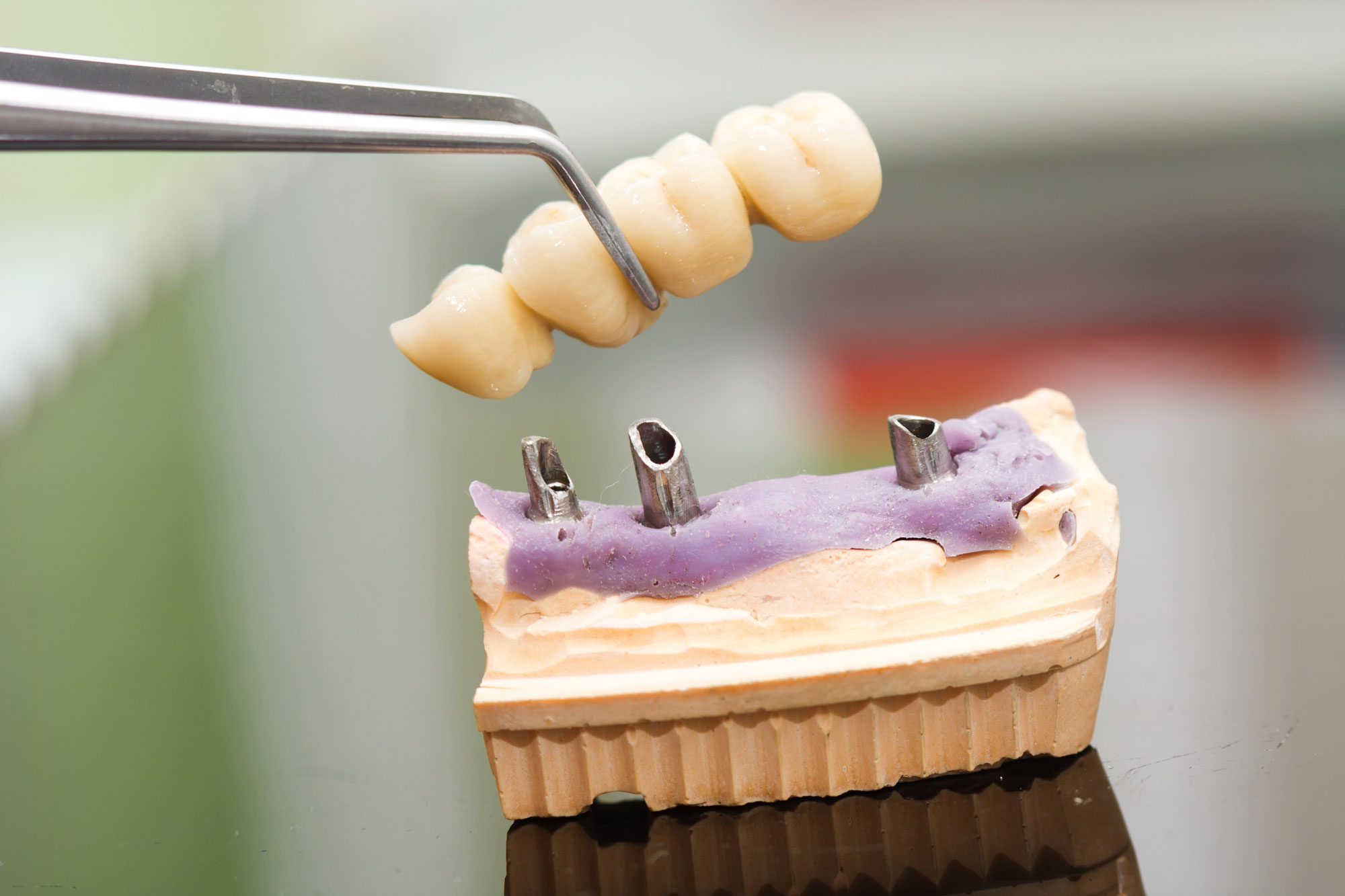 Tooth replacement by an implant in case of teeth missing at the end of the row.