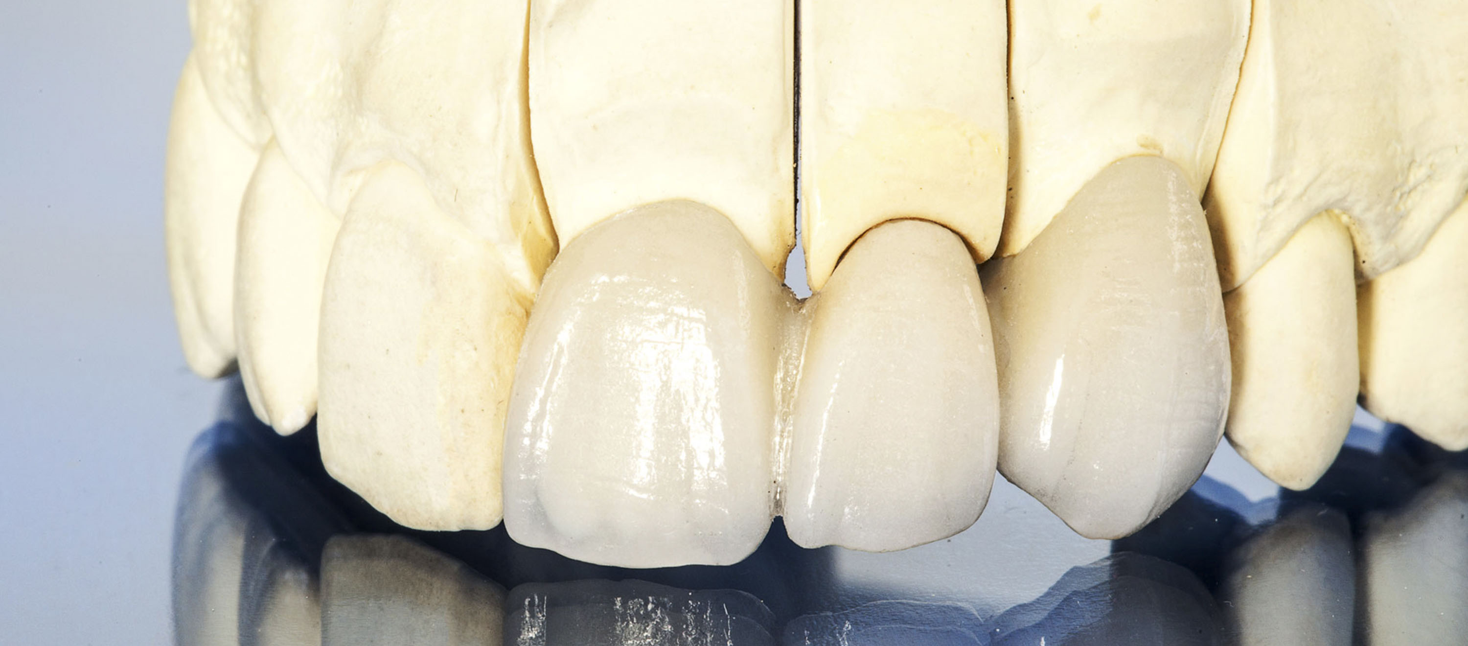 Metal-free tooth replacement (bridge)